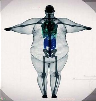 Esqueleto de un obeso. | Etcétera | Pinterest | Anatomía