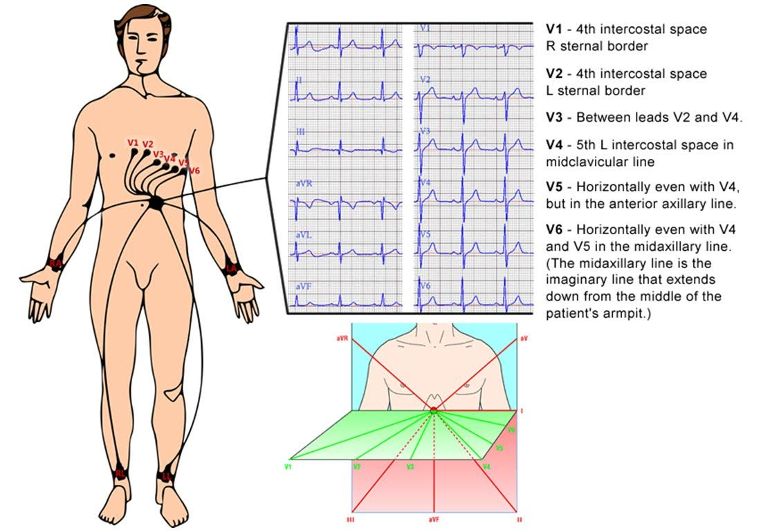 12 Lead ECG Electrode Placement | The Art of Reality: January 2012 ...