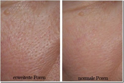 3 Masken gegen erweiterte Poren – Besser Gesund Leben
