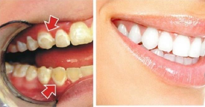 Hilangkan Plak Pada Gigi Anda Hanya Dalam 5 Menit Kesehatan