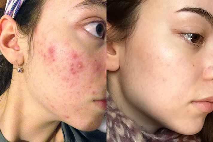 Pin On Acne Blemish Tips