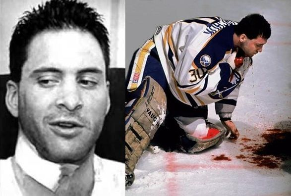 Clint Malarchuk Former Nhl Player In 1989 He Was Hit With An Ice