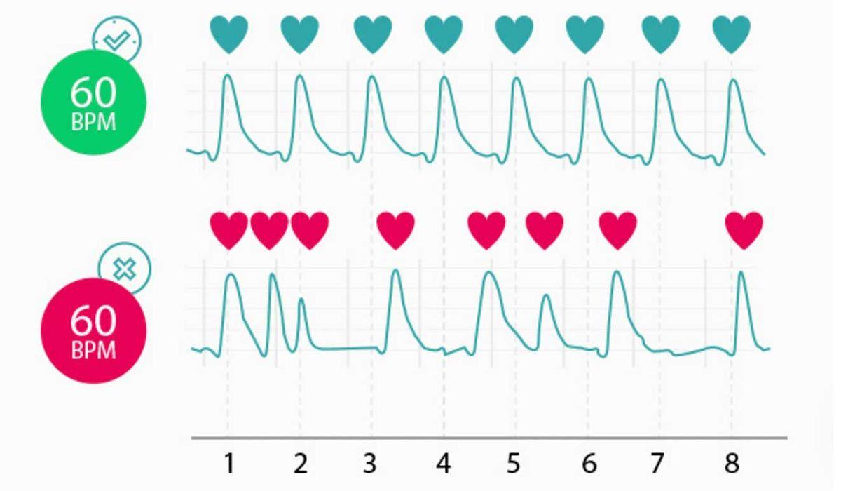 عدد دقات القلب الطبيعي Chart Diagram