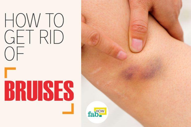 2079f44a5eabd0e2cd61d101a8423bfd - How To Get Rid Of Bruises On Face Overnight