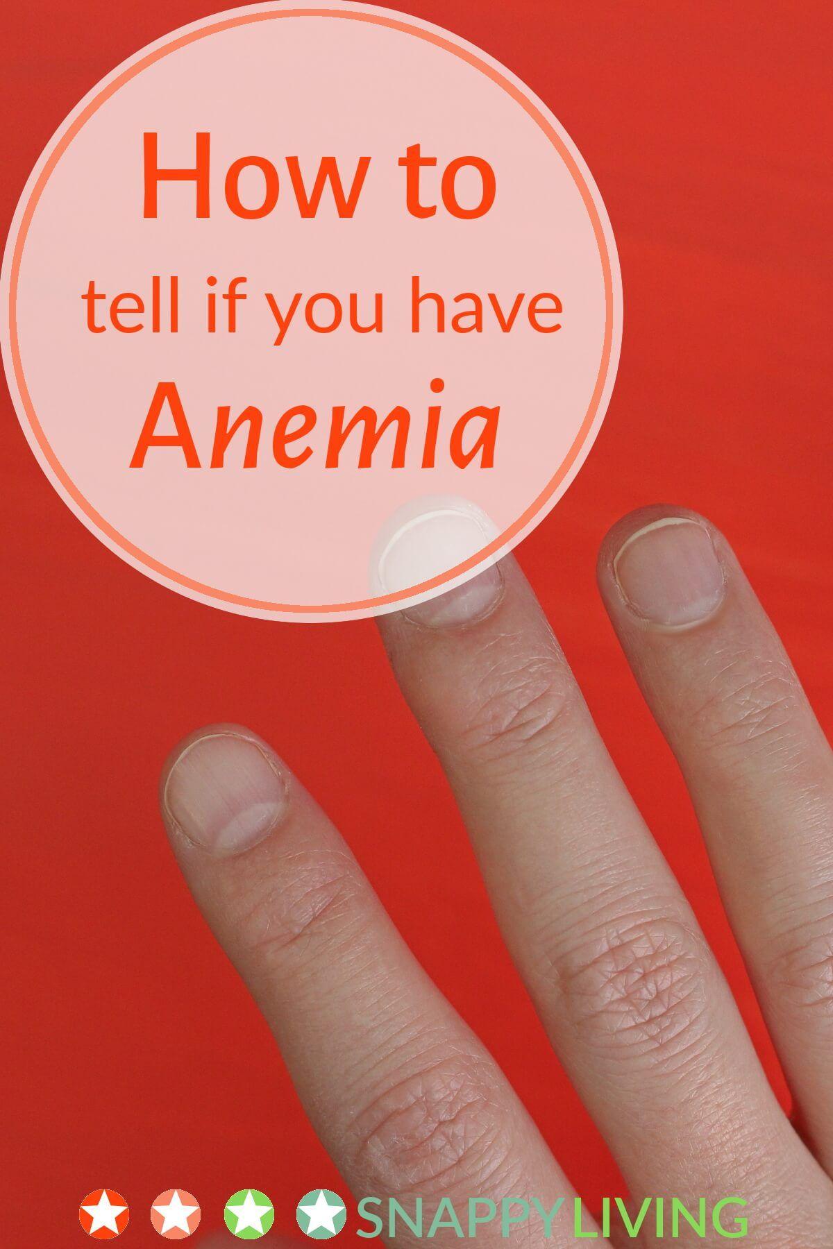 Pin on Anemia