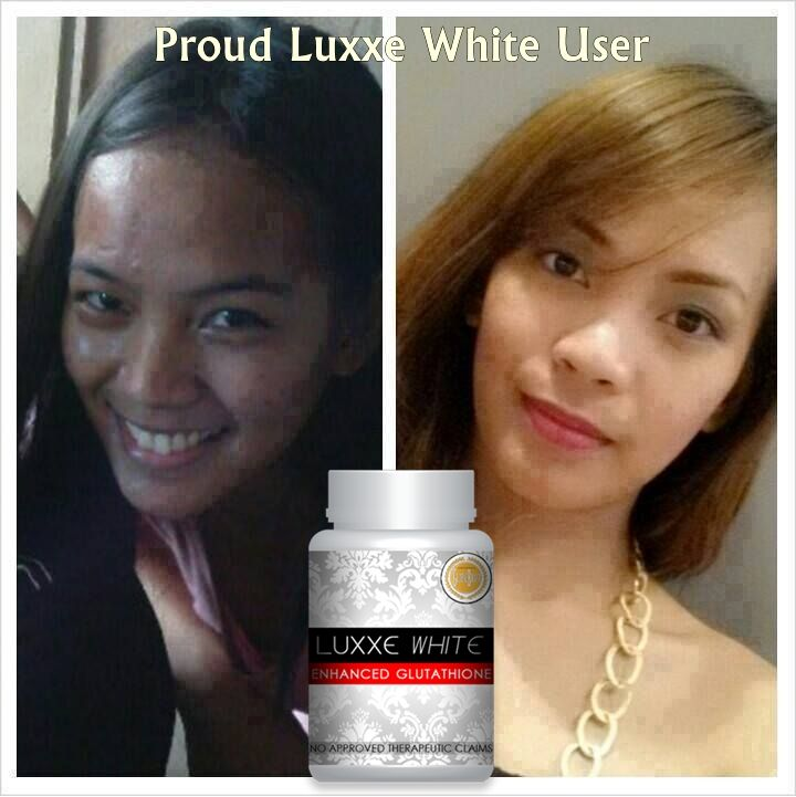 Luxxe White Enhanced Glutathione -Halal approved, FDA approved