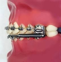 How Long Does It Take to Put Braces on? | Dental braces ...