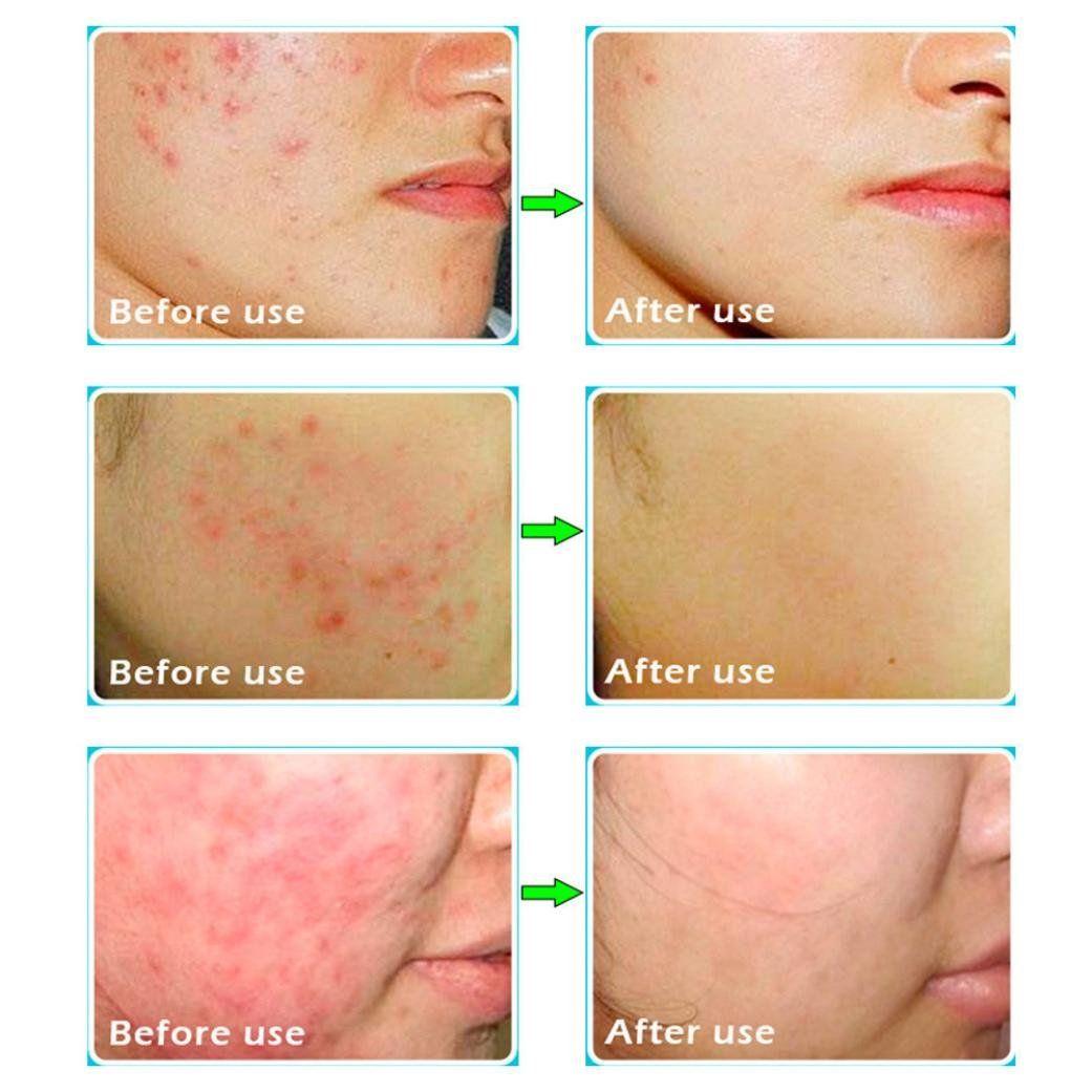 Good, facial skin blemish