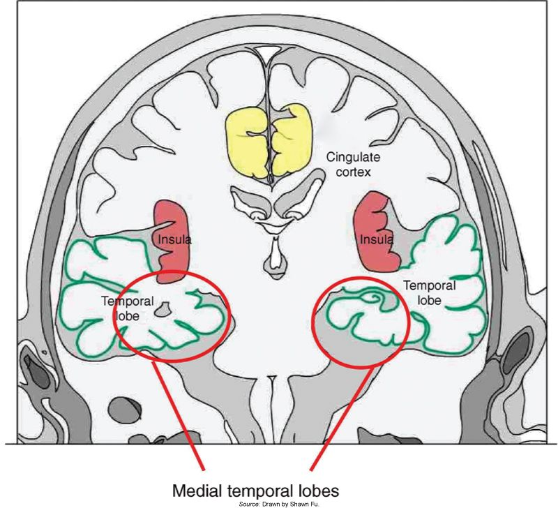 Location of the temporal lobes. It is on both sides behind the ...