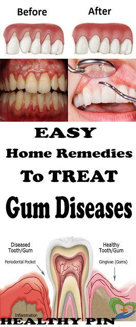 Home Remedies For Gum Disease Gum Disease Treatment Gum Disease Remedies Gum Disease