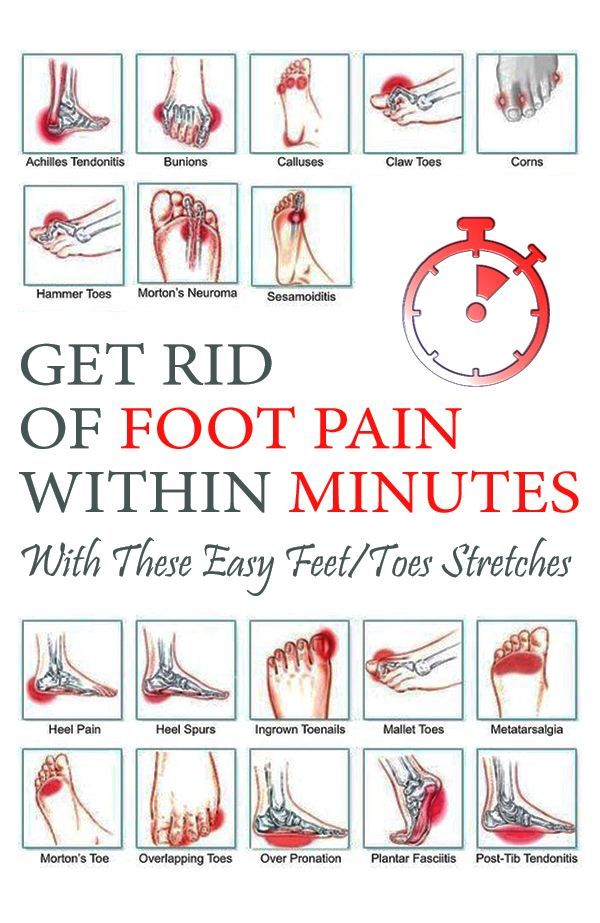 Get Rid Of Foot Pain Within Minutes With These Easy Feet  Toes Stretches