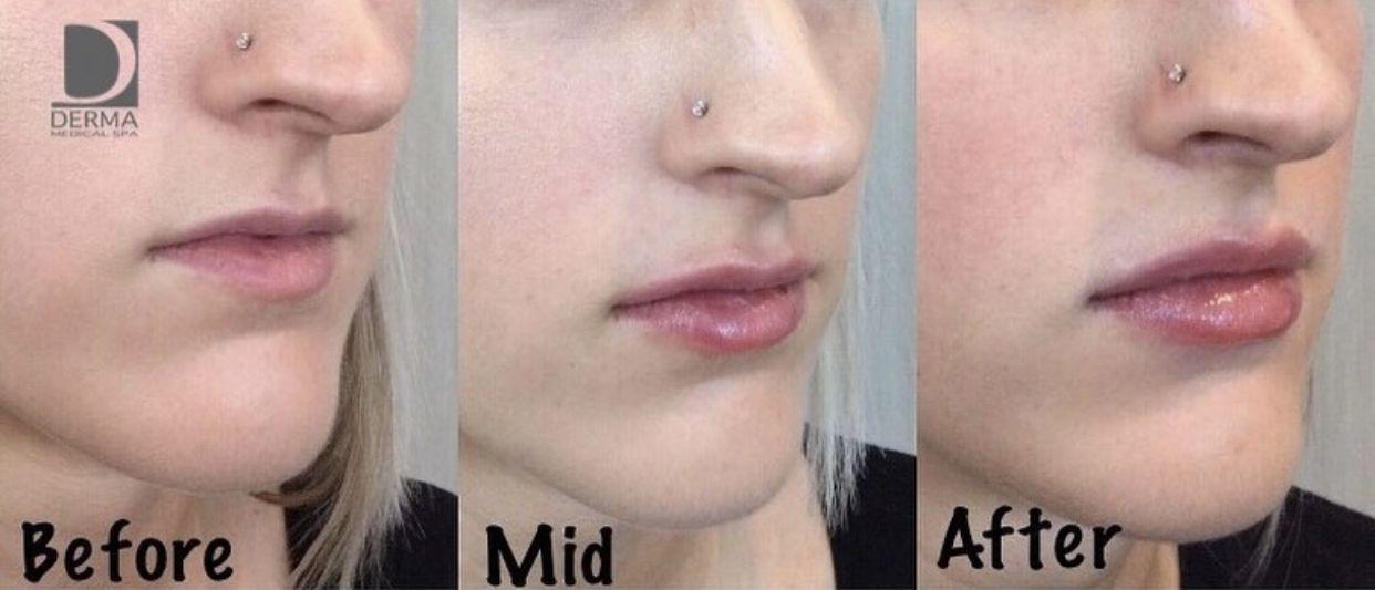 209187d41af710ac02d87097e068d1dc - How To Get Swelling To Go Down On Lip