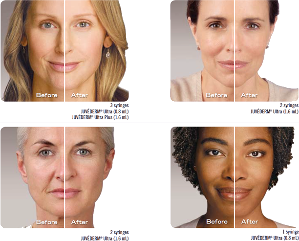 Juvederm Xc Is The Smooth Gel Filler That Your Doctor Uses To Instantly Smooth Away Wrinkles Around Natural Hair Restoration Beauty Procedures Facial Fillers