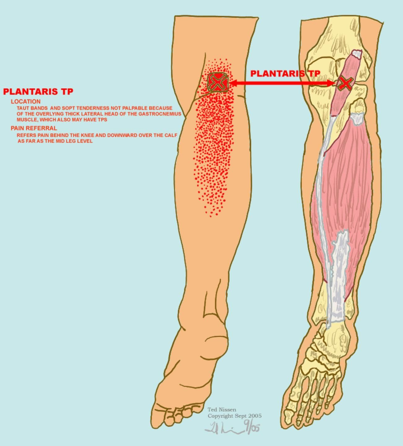 Muscle Tests Illustrations | Running | Pinterest | Muscles
