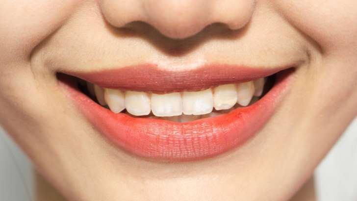The Reason Your Teeth Are So Crooked | Teeth Crooked ...