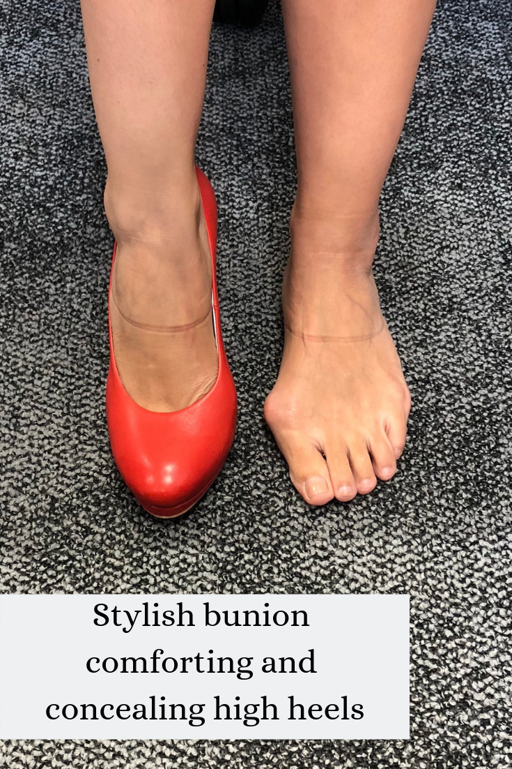 Pin on Beautiful shoes for bunions