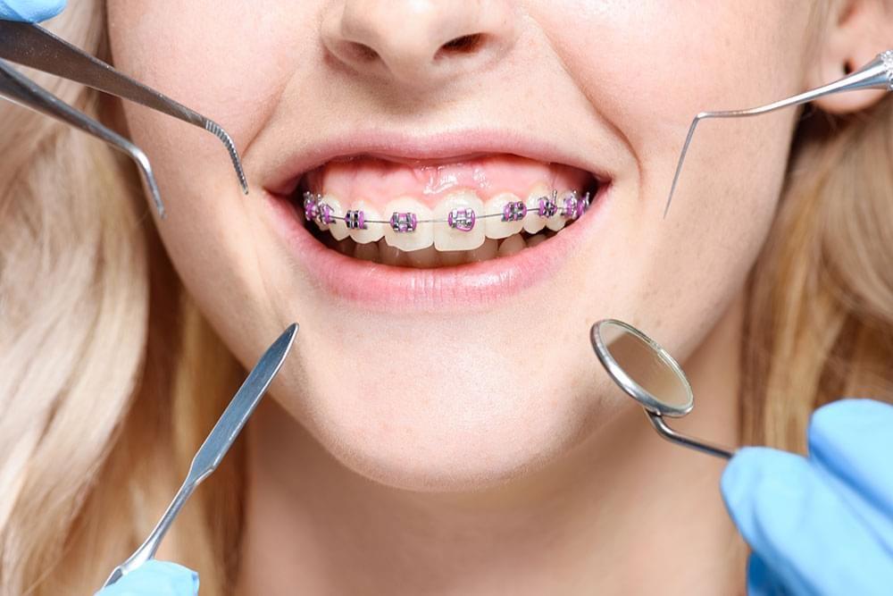 Orthodontics Near Me Invisalign, Braces treatment