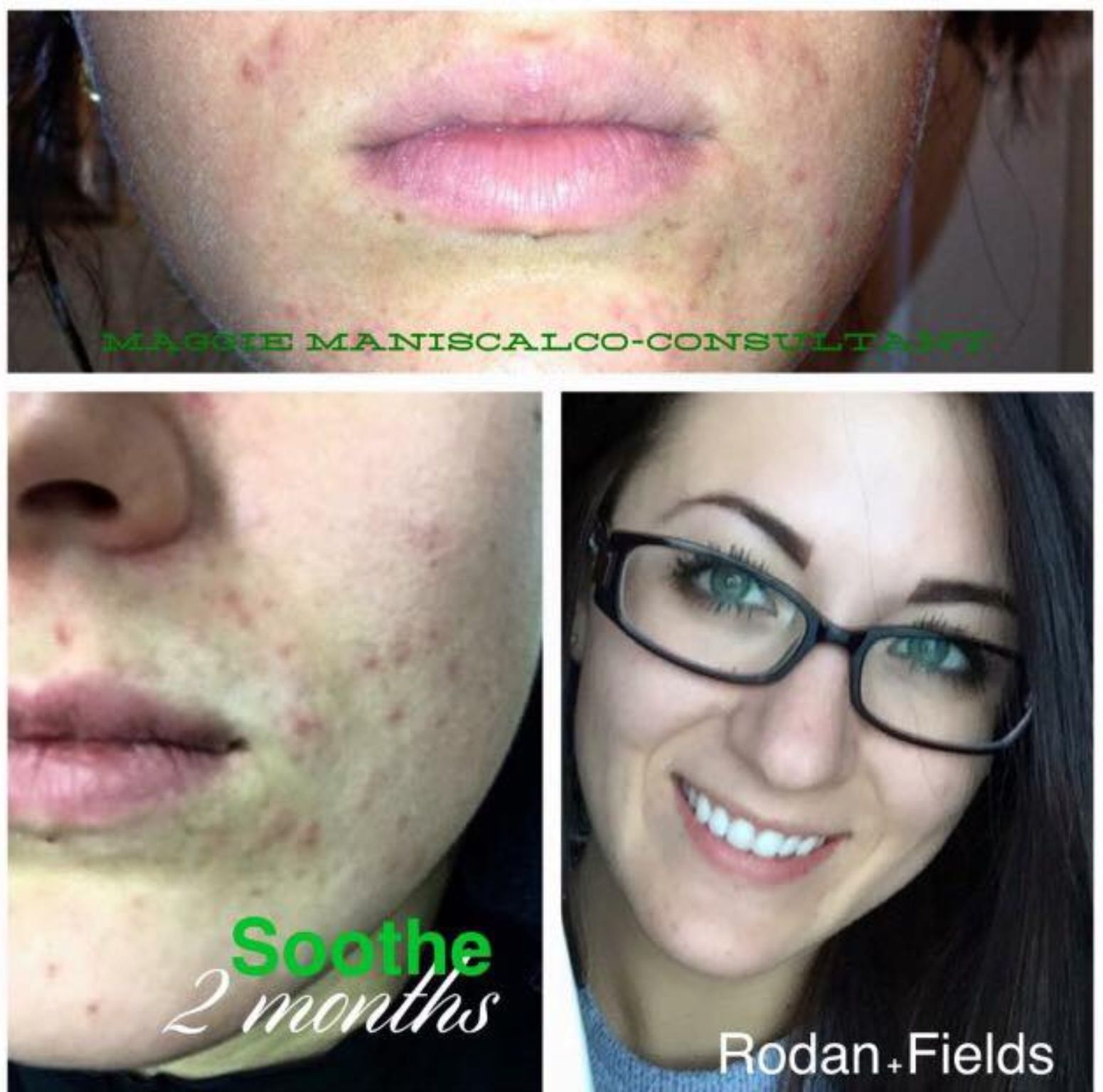 Here Is Maggie S Story My Personal Results I Have Had Perioral Dermatitis A Variant Of Rosacea For 2 Rosacea Skin Care Perioral Dermatitis Skin Disorders