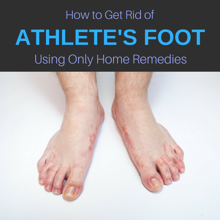 Athlete S Foot Skin Condition Natural Remedies How To Get Rid Of Athlete S Foot Naturally Athletes Foot Remedies Foot Remedies Athletes Foot