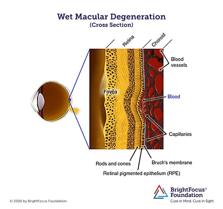 Wet Macular Degeneration Develops When Fragile Blood Vessels Grow Behind  The Macula And Leak Fluid And