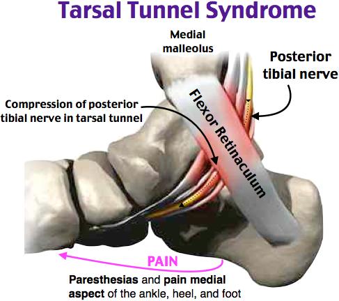 Tarsal Tunnel Syndrome School Pinterest