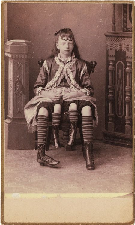 Charles Eisenmann - Myrtle Corbin, the Four-Legged Woman