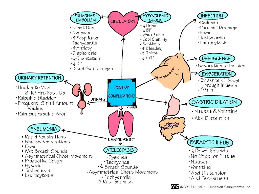 The Postoperative Responsibilities of Nurses  Nursing  Med surg nursing Nursing students