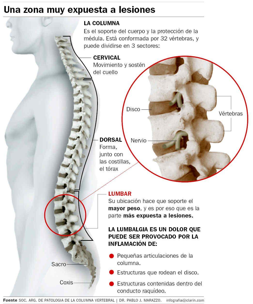 10 Ideas De Hernia Discal Hernia Discal Hernia Dolor De Espalda