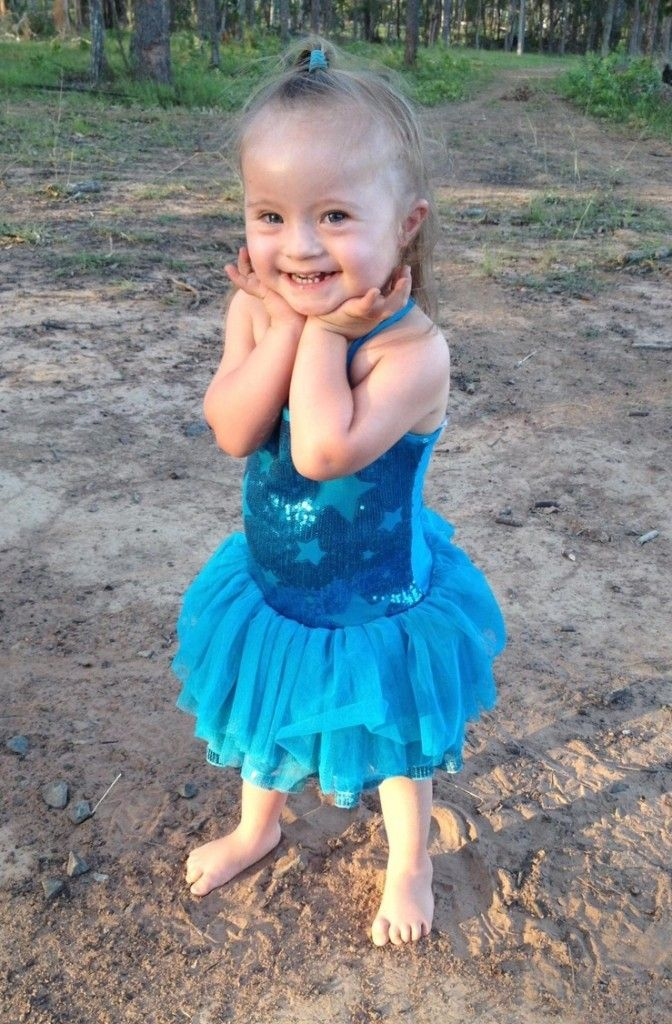 الوجوه الجميلة لمتلازمة داون صور Down Syndrome Down Syndrome Kids Beautiful Face