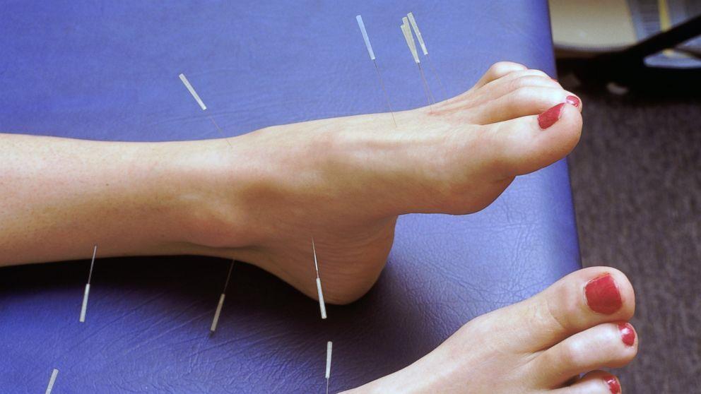 Pin on #2 Fibromyalgia/ Chronic Pain