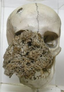 Skull with tumour