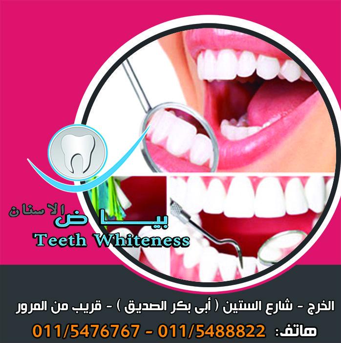 في حالة وجود تسوس عميق في السن أو أية إصابة أخرى فيمكن أن يسبب ذلك تلفا للب السن أو إصابته بعدوى عند إجراء علاج قناة الجذر العصب أو العلاج داخل السن Teeth