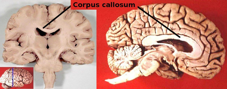 Corpus callosum - Human brain - Wikipedia, the free encyclopedia ...