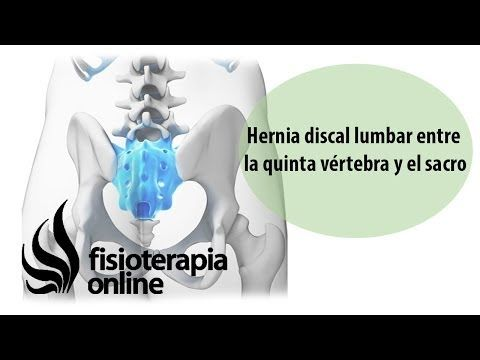 Hernia Discal Lumbar Entre La L5 Y S1 O Quinta Vértebra Lumbar Y El Sacro Fisioterapia Online Http Www Fisioterapia Online C Hernia Discal Hernia Lumbares