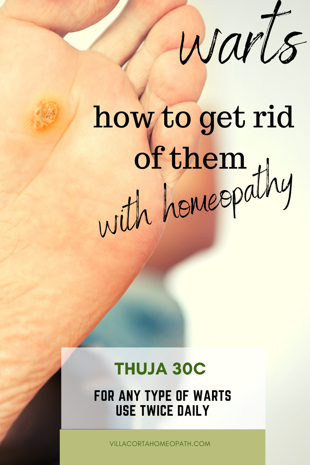 Wart Remedies. How To Get Rid Of Them.