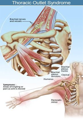 Picture of thoracic outlet syndrome (TOS) showing symptom areas ...