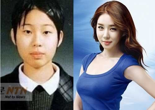 Yoo In Na Plastic Surgery Before And After Images Yoo In