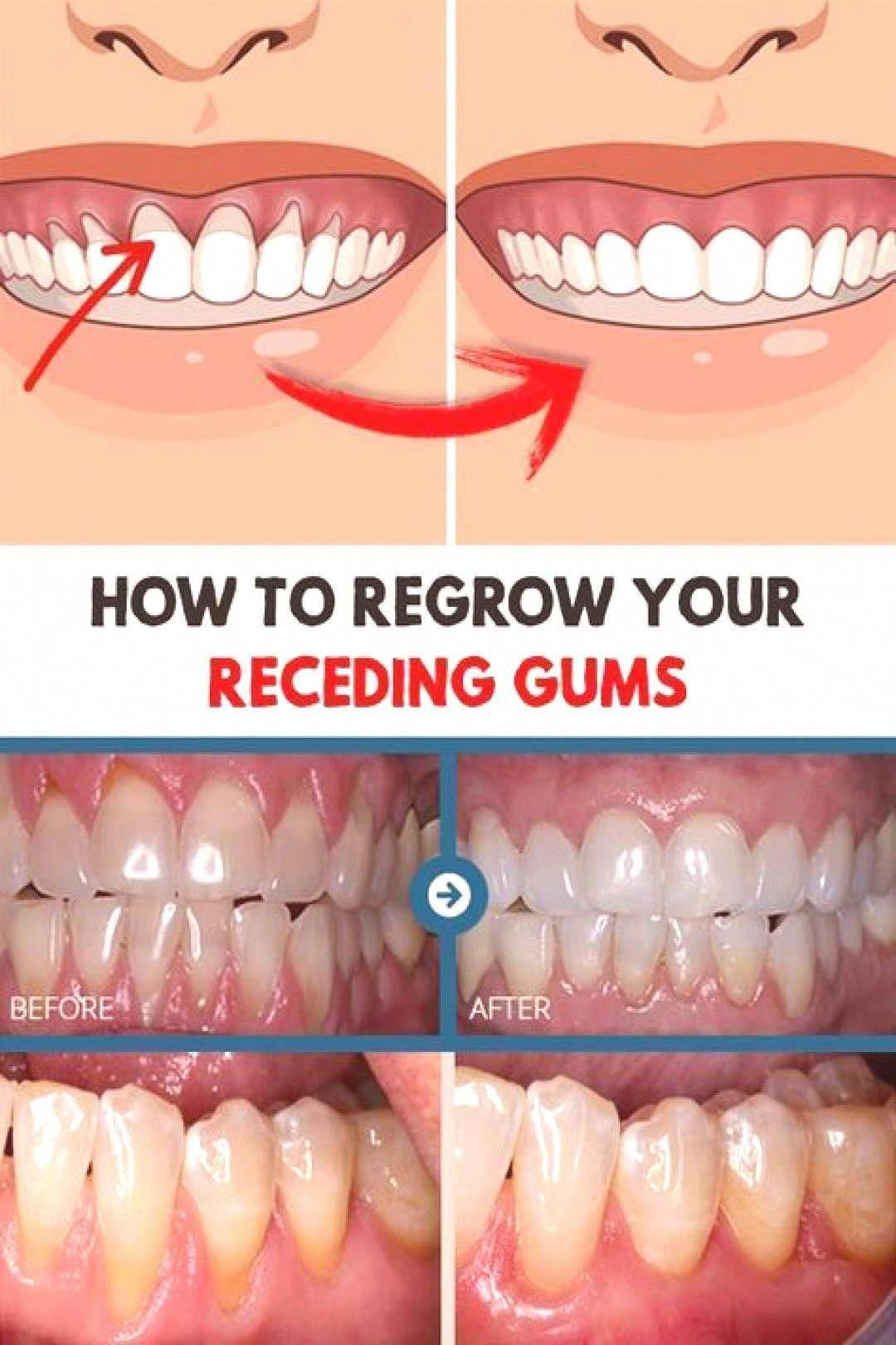 Pin By Heather On Teeth Receding Gums Oral Health Care Oral Care