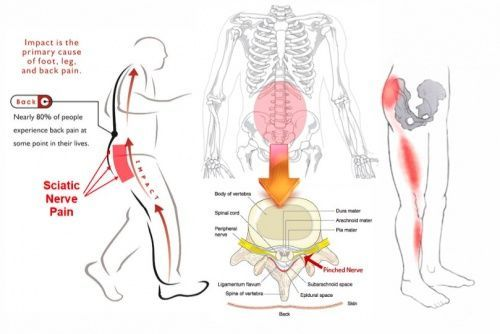 Lower Back Nerve Pain Diagram Diy Enthusiasts Wiring Diagrams