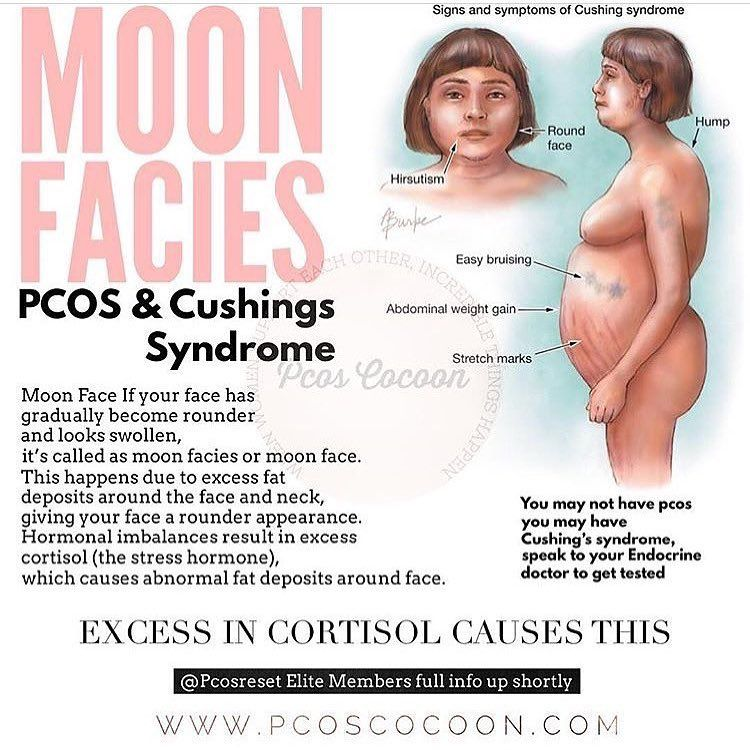 Moon facies occurs when extra fat builds up on the sides of the face