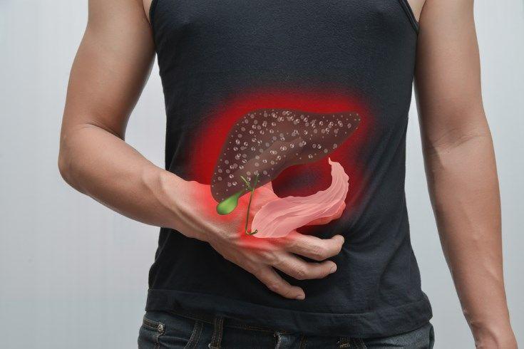 cirrosis hepatica causas sintomas tratamiento y prevencion