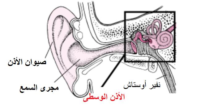 التهاب الأذن الوسطى عند الاطفال Otitis Media Otitis Media Otitis