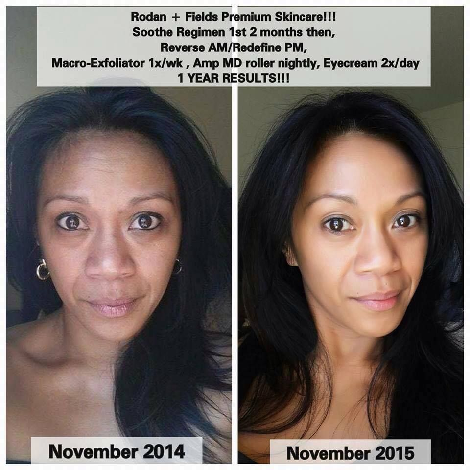 She Struggled With Extremely Sensitive Skin Eczema For Years Was So Bad That She Was Hospitalized Her Rodan And Fields Rodan And Fields Soothe Skin Care