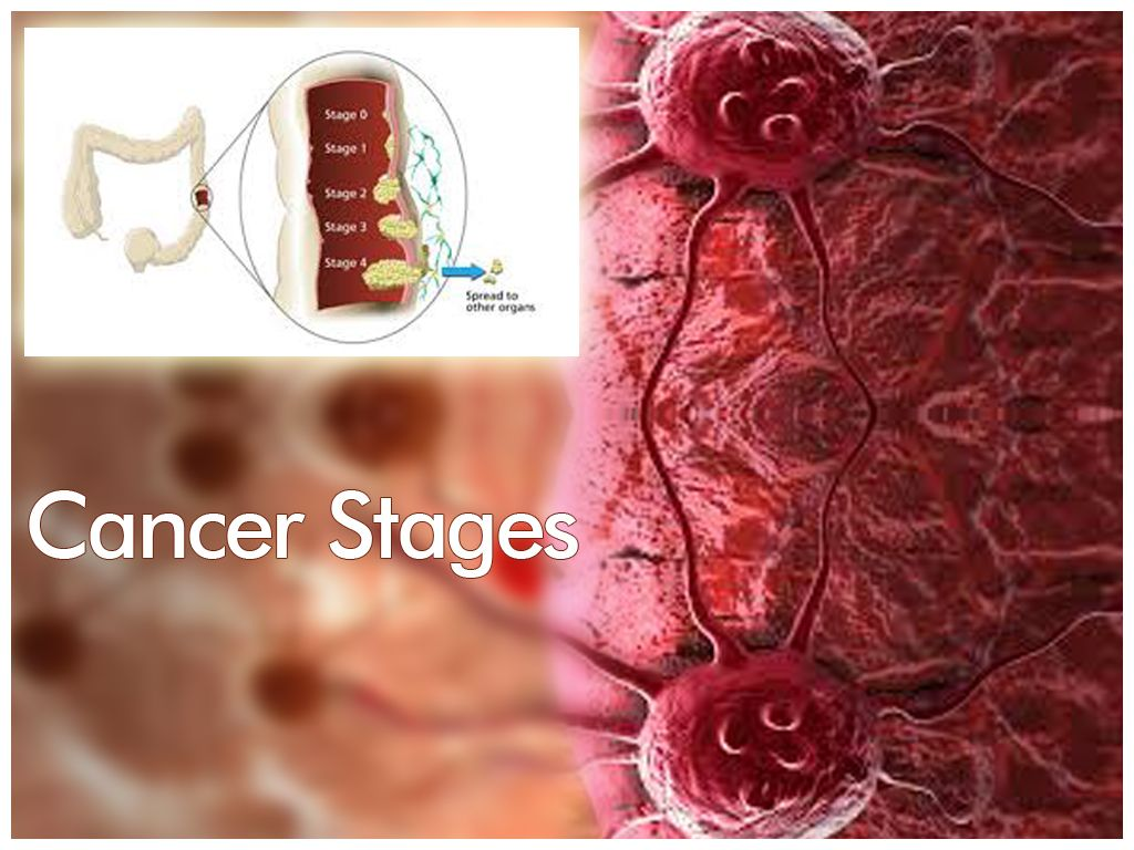cancer is the most dangerous and widespread disease at the time of, Powerpoint templates