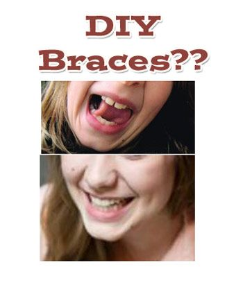 Diy braces dental care and remedies diy braces when you cant afford dental care solutioingenieria Image collections