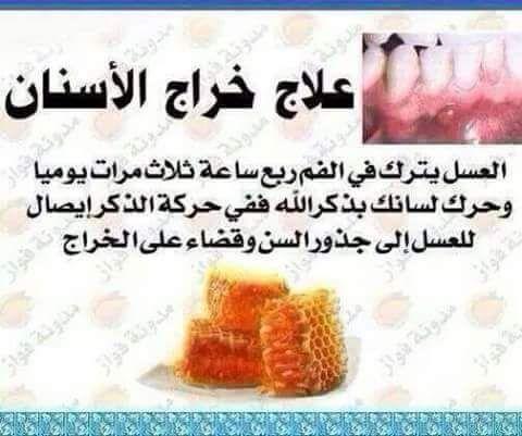 Desertrose علاج خراج الأسنان Health Good To Know Health Fitness