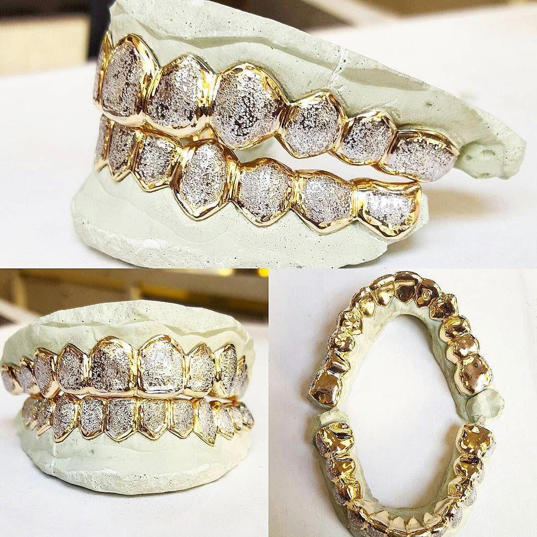Customjewelry Gold Grillz Grillz Custom Jewelry