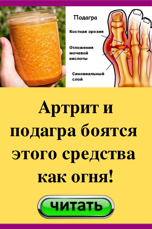 Нарът: естественото облекчение при артрит - Здрави всеки ден - новините за здраве и благополучие