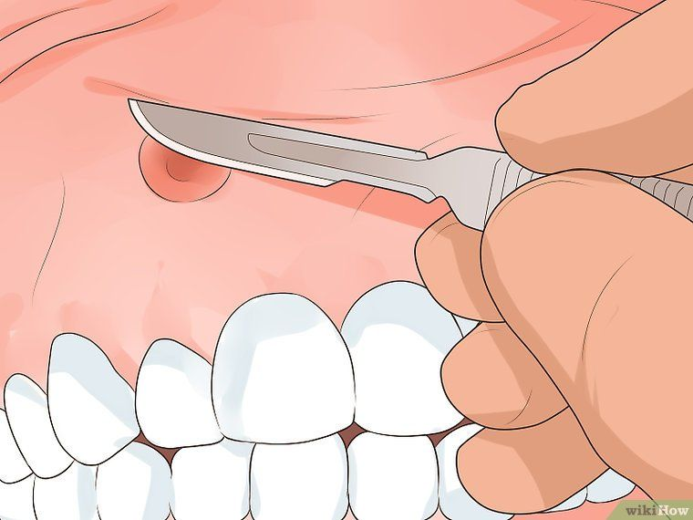 How To Get Rid Of A Gum Boil Gum Get Rid Of Boils Boil
