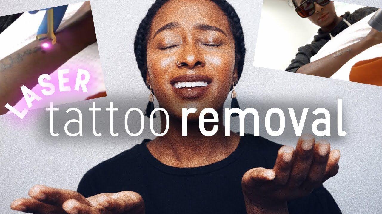 Laser tattoo removal removing my arabic tattoo laser